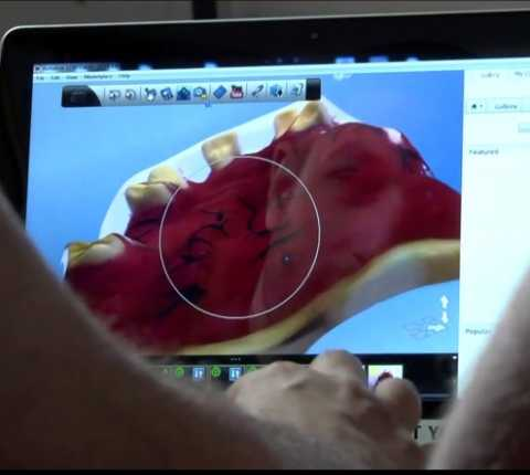 3D Digital Scanning Shortens Denture-Fitting Time  From Days To Minutes